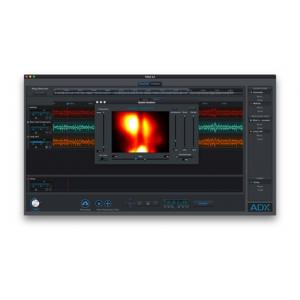 Is Audionamix ADX Trax Pro a good match for you?